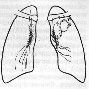 Кавернозный туберкулез легких характеризуется формированием массивных областей разрушения легочной ткани