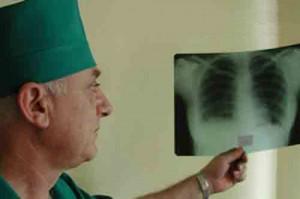 Вторичный туберкулез развивается у ранее инфицированных лиц