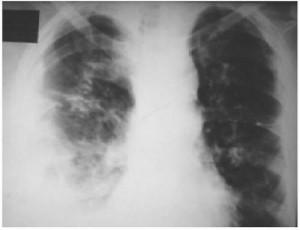 Диссеминированный туберкулез характеризуется формированием в легких множеством очагов инфекции