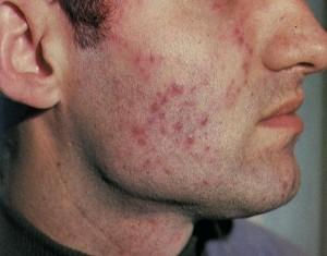 Туберкулез кожи бородавчатый характеризуется безболезненными узелками красноватого цвета