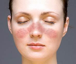 При волчанке туберкулезной высыпания обычно локализуются на лице